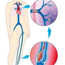 Как предотвратить тромбоз — 5 важных советов