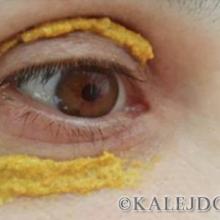 Маска из куркумы смягчит кожу и разгладит морщины возникающие в углах глаз