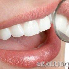 Простой рецепт отбеливания и лечения зубов по Неумывакину